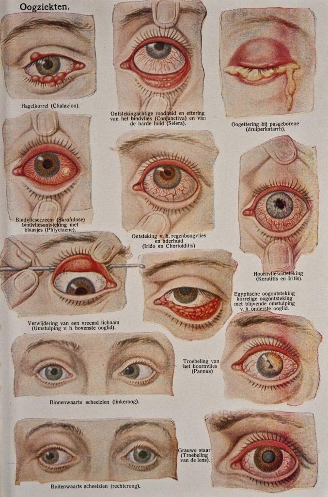 conjuntivitis ojos rojos