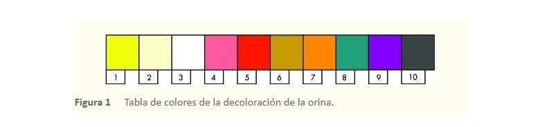 Pantone de la orina: ¿de qué color es el tuyo?