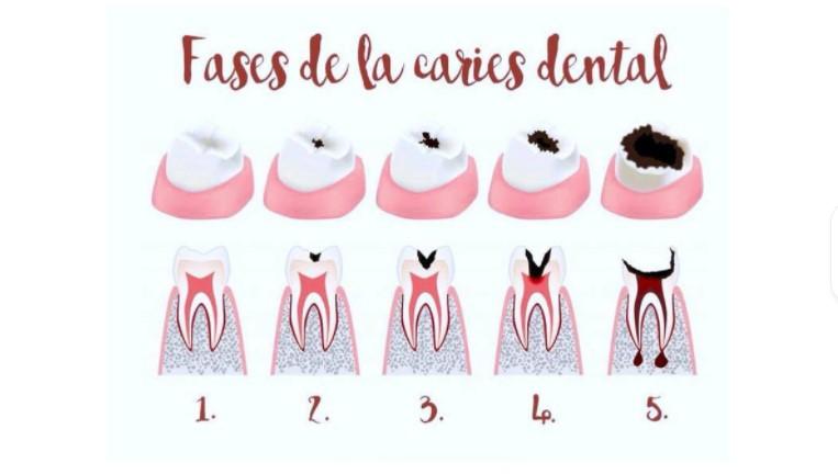 Fases de la caries dental