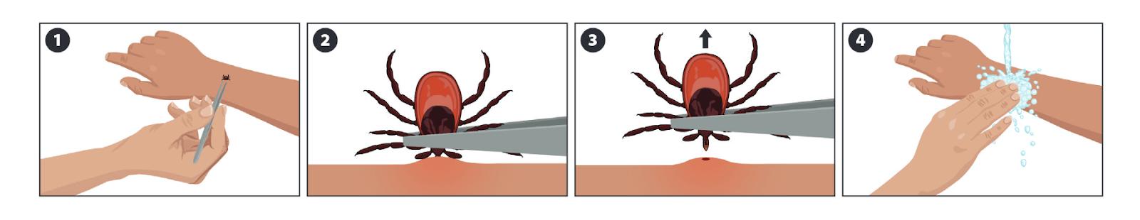 ¿Cómo retirar las garrapatas con pinzas?